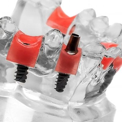 Dentálne implantáty